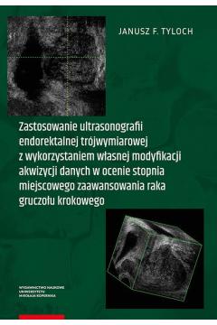 Zastosowanie ultrasonografii endorektalnej trójwymiarowej