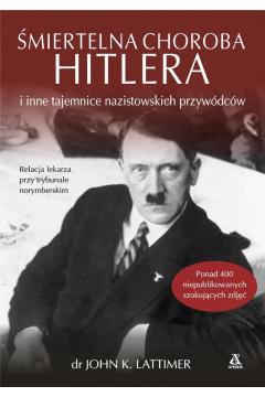 Śmiertelna choroba Hitlera i inne tajemnice..