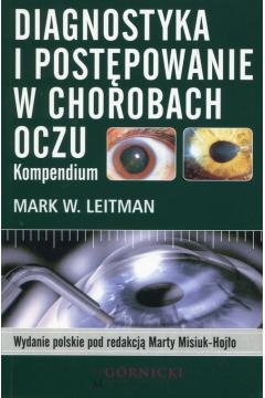 Diagnostyka i postępowanie w chorobach oczu. Kompendium