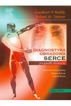 Diagnostyka obrazowa serca przypadki kliniczne