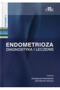 Endometrioza. Diagnostyka i leczenie