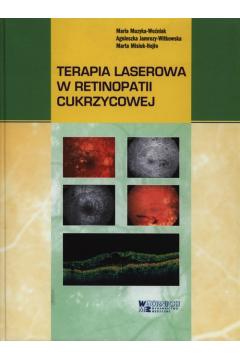 Terapia laserowa w retinopatii cukrzycowej