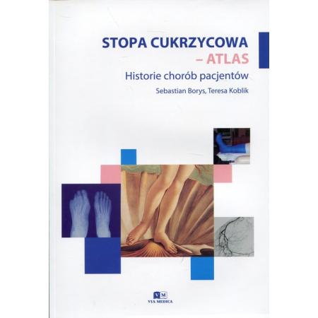Stopa cukrzycowa - atlas